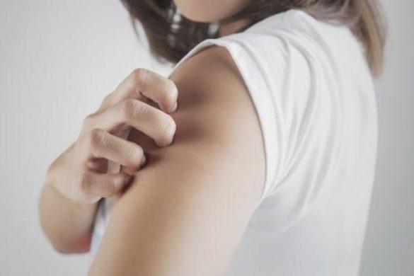 Le méthylisothiazolinone, le champion des démangeaisons, eczémas ou autres dermatites